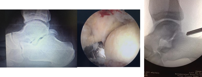 Ankle Arthroscopy - Arthroscopic Surgery on the Foot And Ankle