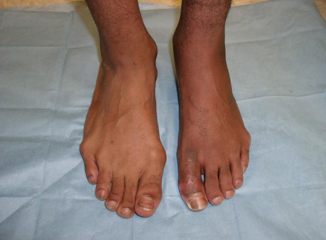 Arch and Ball Problems | Dominion Foot and Ankle Consultants
