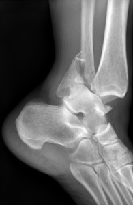 Foot Fracture - Treatment For Foot Fractures In Fairfax, Virginia